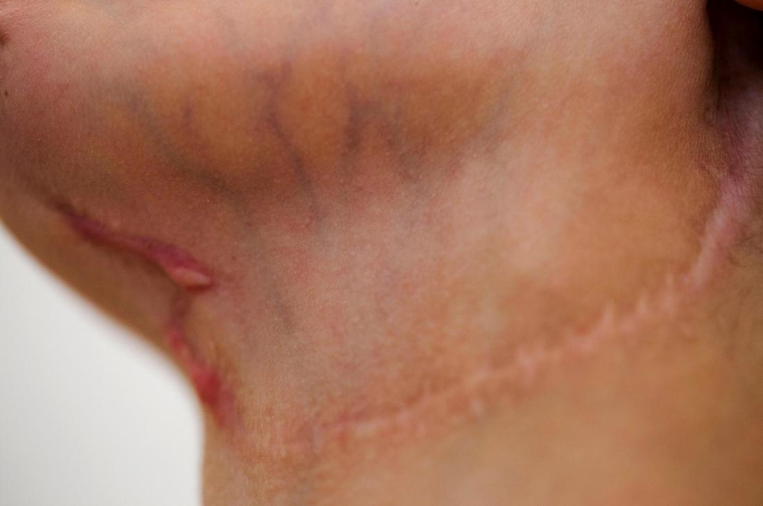 facescar